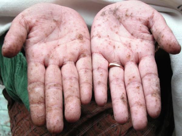 mãos com manchas pretas